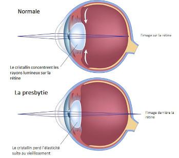 lentilles-contact-oeil-presbyte