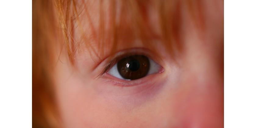 L 39 adaptation des lentilles de contact chez l enfant et l - A quel age peut on porter des lentilles de contact ...